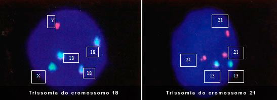 PGD Trissomia